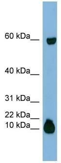 Western blot - Statherin antibody (ab97950)