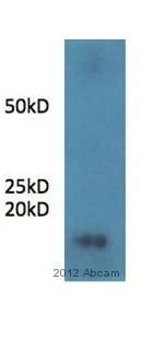 Immunoprecipitation - Anti-Statherin antibody (ab97950)