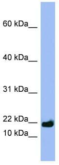 Western blot - SPRR3 antibody (ab97955)