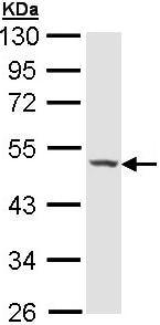Western blot - Haptoglobin antibody (ab97976)