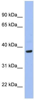Western blot - PIM1 antibody (ab98004)