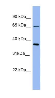 Western blot - Uromucoid antibody (ab98011)