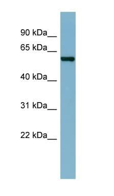 Western blot - CAP1 antibody (ab98013)