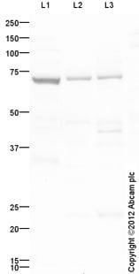 Western blot - Anti-Prolactin Receptor antibody (ab98015)