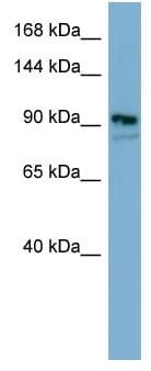 Western blot - FAM62B antibody (ab98049)