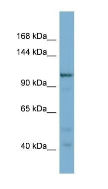 Western blot - COPG2 antibody (ab98055)