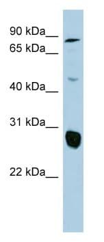 Western blot - SLC26A4 antibody (ab98091)