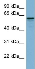 Western blot - DCTN4 antibody (ab98098)