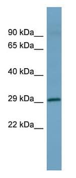 Western blot - HOXD1 antibody (ab98100)