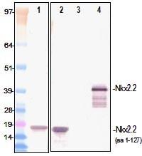 Western blot - Nkx2.2 antibody [PR-1C11] (ab98126)