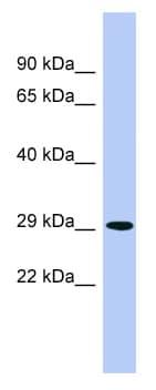 Western blot - PHYH antibody (ab98131)