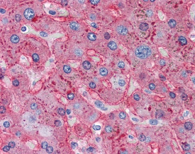 Immunohistochemistry (Formalin/PFA-fixed paraffin-embedded sections) - Apolipoprotein B antibody (ab98132)