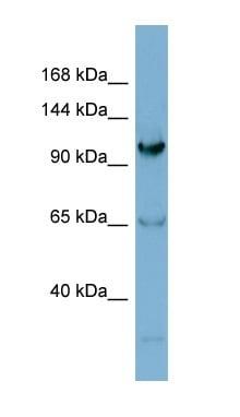 Western blot - Gemin 4 antibody (ab98139)