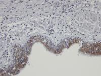 Immunohistochemistry (Formalin/PFA-fixed paraffin-embedded sections) - SHKBP1 antibody (ab98148)