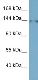 Western blot - FAM135B antibody (ab98149)