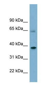 Western blot - SNX7 antibody (ab98159)