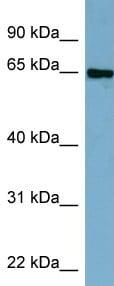 Western blot - MTGR1 antibody (ab98172)