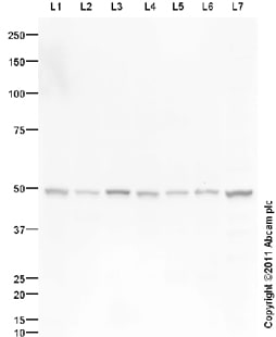 Western blot - WIPF1 antibody (ab98176)