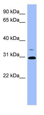 Western blot - Phosphoserine phosphatase antibody (ab98185)