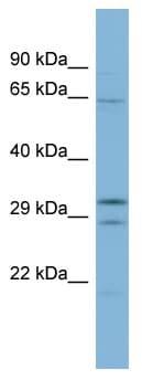 Western blot - FAM131C antibody (ab98189)