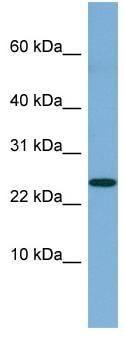 Western blot - NBL1 antibody (ab98197)