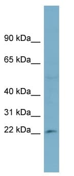 Western blot - RPL13A antibody (ab98211)
