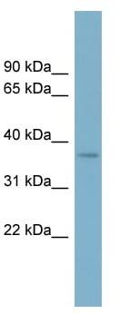 Western blot - SPAG4L antibody (ab98212)