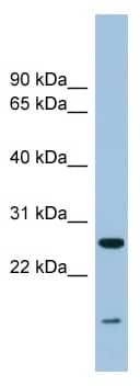 Western blot - TRAPPC4 antibody (ab98219)