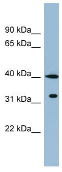 Western blot - KCTD9 antibody (ab98221)