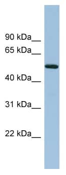 Western blot - TRIM41 antibody (ab98224)