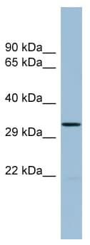 Western blot - THG1L antibody (ab98225)