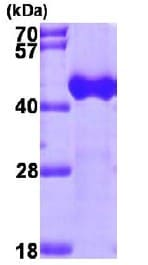 SDS-PAGE - ACAA1 protein (ab98236)