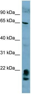 Western blot - FAM134A antibody (ab98244)
