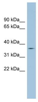 Western blot - TMPRSS12 antibody (ab98263)