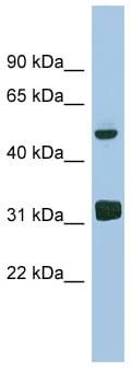 Western blot - LYAR antibody (ab98268)