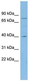 Western blot - CUTL1 antibody (ab98273)