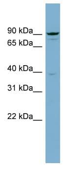 Western blot - APPL  antibody (ab98312)