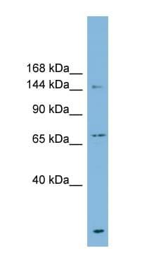 Western blot - P Glycoprotein antibody (ab98322)