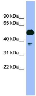 Western blot - Tbp7  antibody (ab98330)