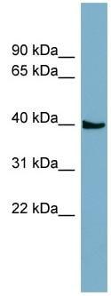 Western blot - SLC35D3 antibody (ab98334)