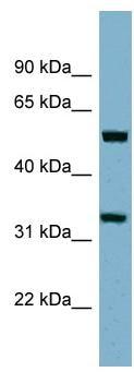 Western blot - TMEM158 antibody (ab98335)