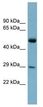 Western blot - RAB27A antibody (ab98339)