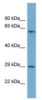 Western blot - MGC20410 antibody (ab98350)