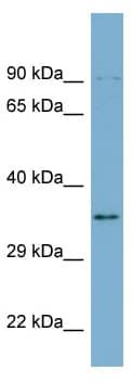 Western blot - LOC51035 antibody (ab98845)