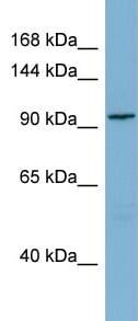 Western blot - SGEF antibody (ab98848)