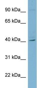 Western blot - RFPL3 antibody (ab98849)