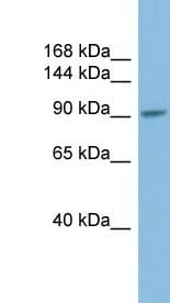 Western blot - PIWIL2 antibody (ab98852)