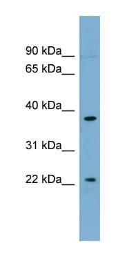 Western blot - FOXN4 antibody (ab98860)