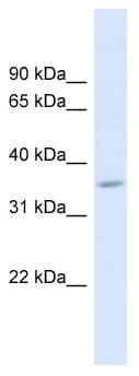 Western blot - FAM26F antibody (ab98871)