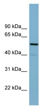 Western blot - CDK5RAP1 antibody (ab98908)